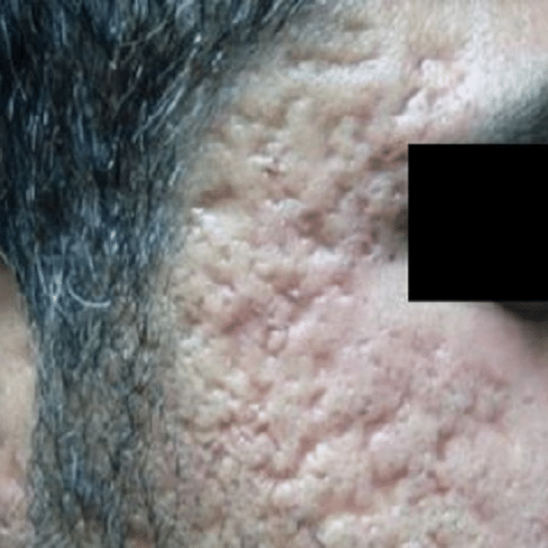Acne-scars-courtesy-of-Dr.-Anil-Ganjoo-Skinnovation-Clinics-New-Delhi-India-before-intensif600px