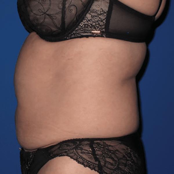Body-TC-courtesy-of-Dr_Sam-Robson,-Scotland-600px