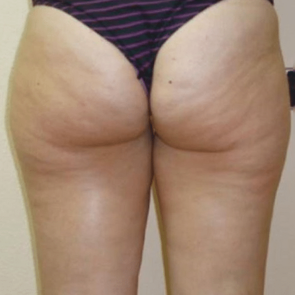 Cellulite-reduction-courtesy-of-Dr.-Mariola-Bellon,-Cenydiet-Clinic,-Spain-after