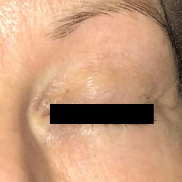 Eye-lift-courtesy-of-AesthetiCare,-UK-after600