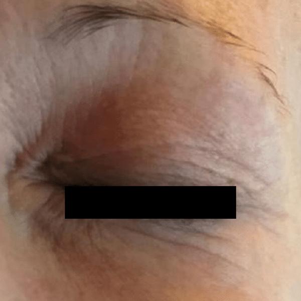 Eye-lift-courtesy-of-AesthetiCare,-UK600