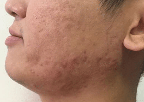 Active-Acne-Courtesy-of-Juvamed-China-after-1-Intensif-treatment-active-acne600px.png