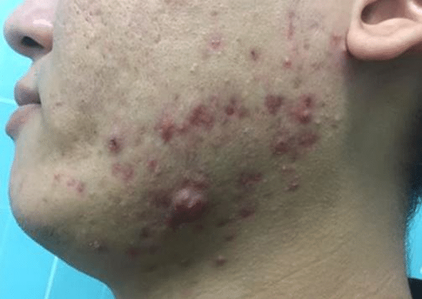 Active-Acne-Courtesy-of-Juvamed-China-before-Intensif600px.png