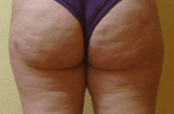 Cellulite-reduction-Courtesy-of-Dr.-Mariola-Bellon-Cenydiet-Clinic-Spain-after-6-sessions-Contour600px.png