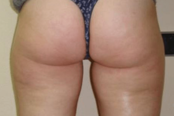 Cellulite-reduction-Courtesy-of-Dr.-Mariola-Bellon-Cenydiet-Clinic-Spain-before-Contour600px.png
