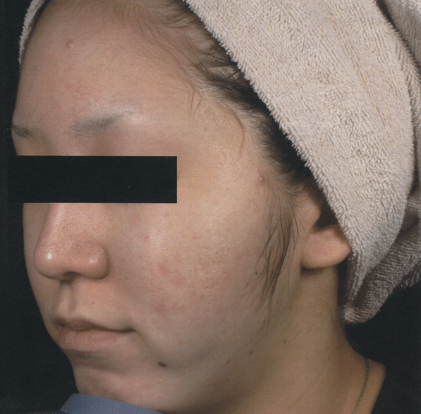 FSR-Treatment-Photographs-courtesy-of-Masaki-Sato-M.D.-After600px.png