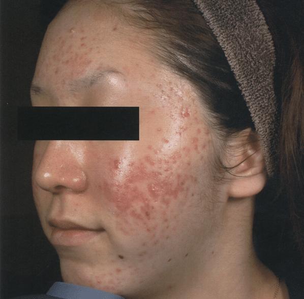 FSR-Treatment-Photographs-courtesy-of-Masaki-Sato-M.D.-Before600px.png