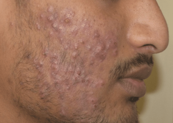FSR-Treatment-Pictures-courtesy-of-Shantiprasad-Tippanwar-MD-Before600px-1.png