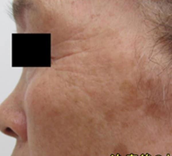 Face-tightening-courtesy-of-Dr.-Masahide-Shinohara-Japan-after.jpg