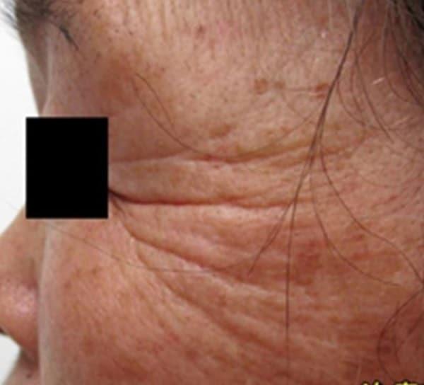 Face-tightening-courtesy-of-Dr.-Masahide-Shinohara-Japan.jpg