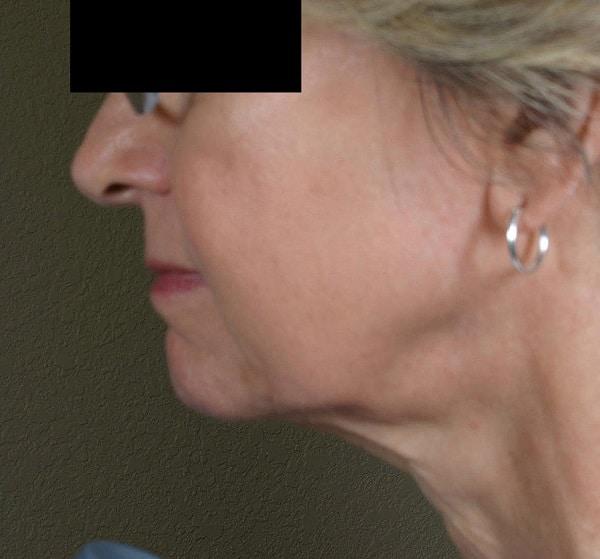 Facial-tightening-TC-Dr.-Fiona-Wright-After-1.jpg