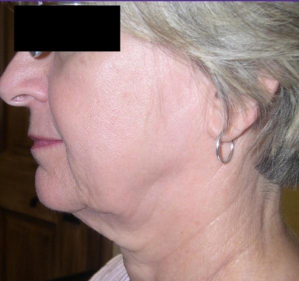 Facial-tightening-TC-Dr.-Fiona-Wright-before.jpg