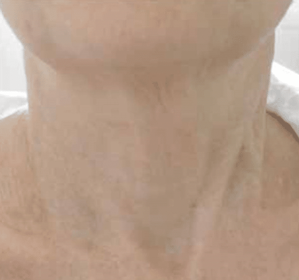 Neck-tightening-courtesy-of-Dr.-Isabelle-Rousseaux-France-4-months-after-2-FSR-treatments600px.png