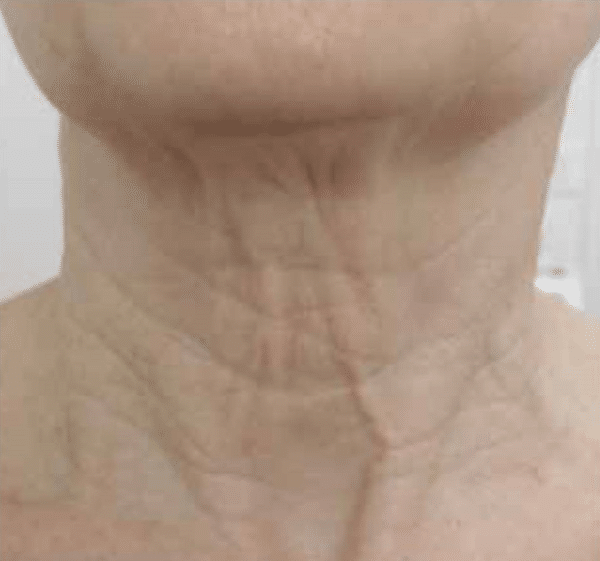 Neck-tightening-courtesy-of-Dr.-Isabelle-Rousseaux-France-before-FSR600px.png