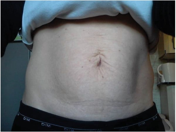 Treatment-page-Body-tightening-TC-Dr.-Thierry-Leva-after-2-sessions600px.jpg